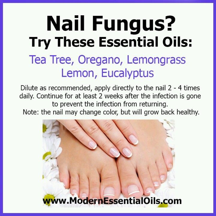 Essential oils for nail fungus Find me on Facebook: Essential Oils Journey https://www.facebook.com/YLEO1884304
