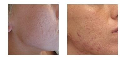Dermaroller kezelés Milyen problémákra ajánljuk az orvosi dermaroller (1,5-2 mm) kezelést?  arc, nyak, dekoltázs, kézfej anti-aging kezelése,bőrfiatalítás,ránckezelés,akne heg kezelés ,stria kezelés http://www.arcfiatalitaspecs.hu/orvosi-dermaroller-kezeles/
