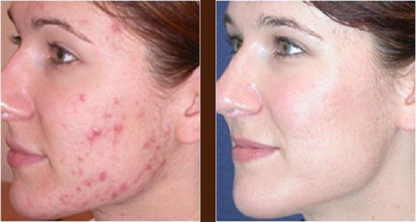 This Plant Is A Real Poison For Pimples - Results in Only 3 Days