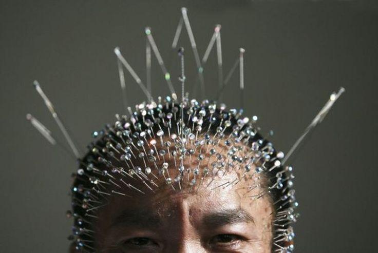 Ο βελονισμός βοηθάει στον πονοκέφαλο