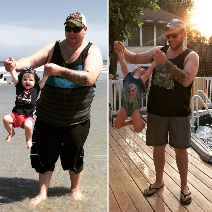 #WeAreBariMelts Challenge Matt Diehl Weight Loss Transformation Story  Surgery type:Vertical Sleeve Gastrectomy/Gastric Sleeve (VGS) Surgery date:June 2016 Pre-surgery weight:400 Current weight: 273  Here is a little bit more about Matt's WLS journey:  Hi, my name is Matt, and my entire life I struggled with obesity. When I hit the age 30 I reached 400 pounds! Knowing I was worth more than a heavy set stricken life and having a wife and two small little girls d...