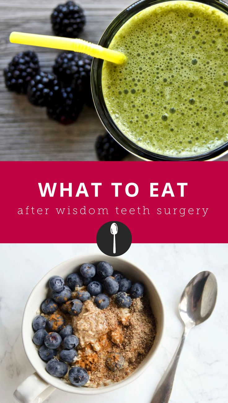 7 foods you can eat after wisdom teeth surgery that aren't ice cream  wisdom teeth removal food