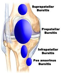 The bursae of the knee - lubricating pockets that help with knee movement. When inflamed the localised swelling within the bursa is called 'bursitis'. #bursitis #prepatellarbursitis #infrapatellarbursitis