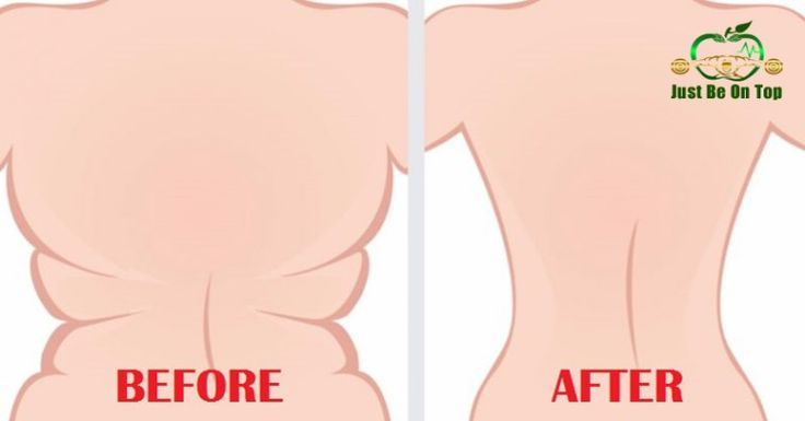 FB TRY THE 6 WORLD'S EASIEST EXERCISES FOR BACK FAT AND UNDERARM FLAB
