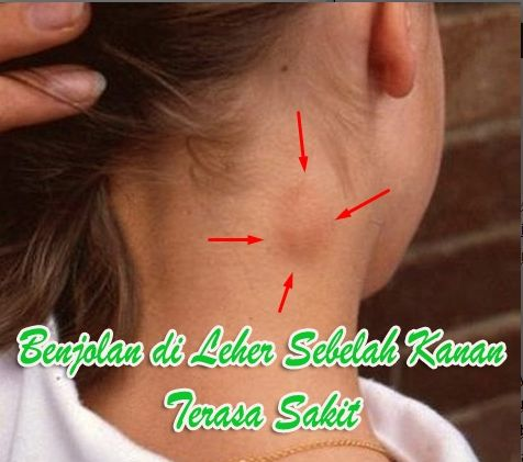 Benjolan di leher sebelah kanan terasa sakit kira-kira keadaan macam itu menandakan penyakit apa? Silahkan simak di sini