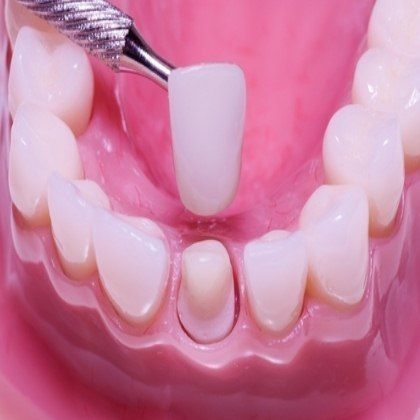 47 Best Images About Dental Crowns On Pinterest Cap D