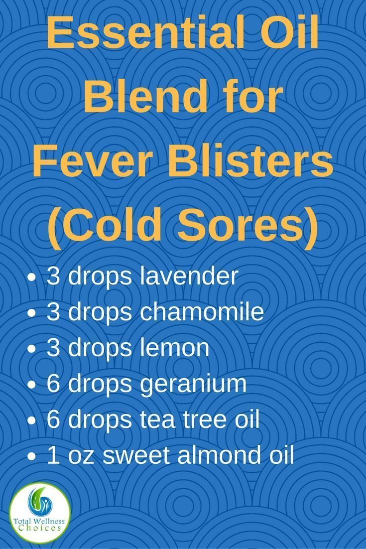 Looking for an essential oil blend for fever blisters? Try this essential oil recipe for cold sores!