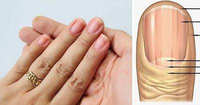 Tips y mas : Marcas en tus uñas podrían decirte si tienes SIDA,...