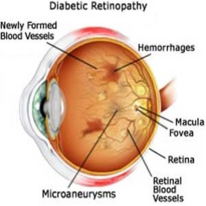 thesis on diabetic retinopathy Diabetic retinopathy refers to retinal changes that occur in patients with diabetes mellitus these changes affect the small blood vessels of the retina and can lead.