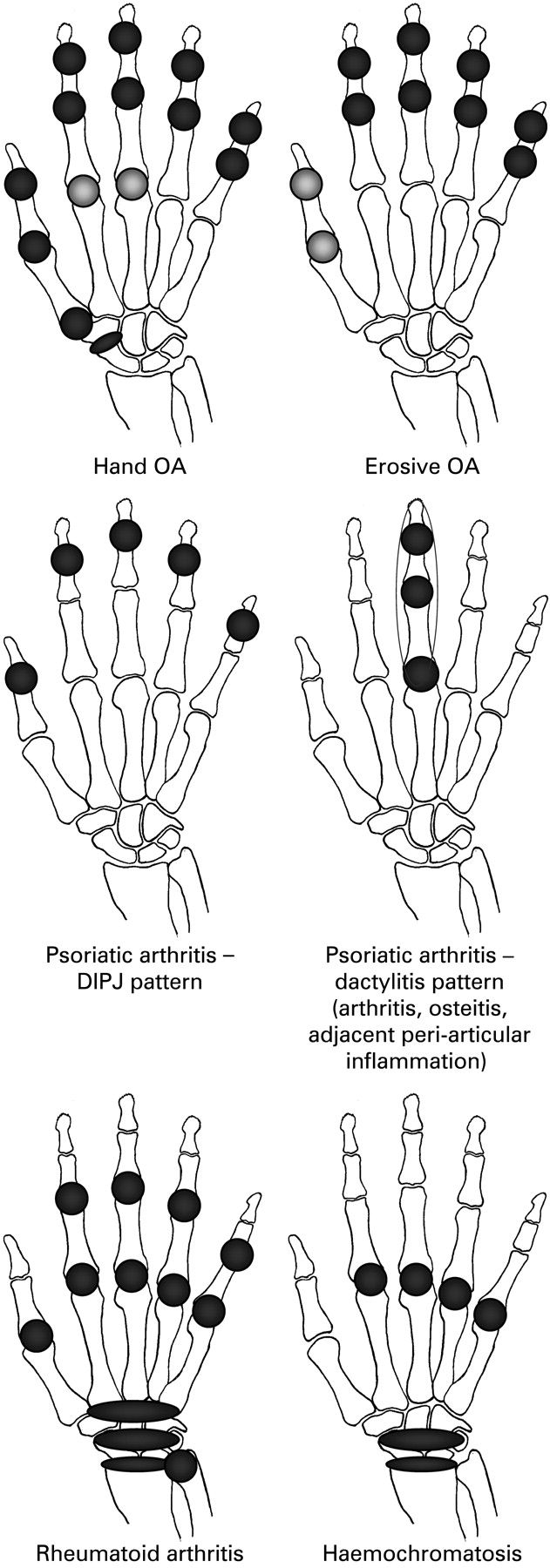 Hand involvement in different types of arthritis.  Re-Pinned by @Providastaff– Please Visit pinterest.com/providastaff for all our therapy pins.