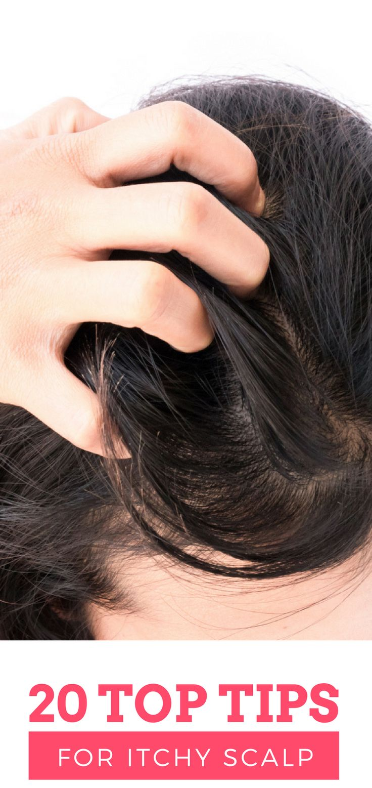 An itchy scalp, also known as Scalp Pruritus, is a common problem among individuals that causes significant discomfort, with frequent scratching being the most common symptom. An itchy scalp may also lead to skin infections, swelling, redness, balding, and damaged hair.