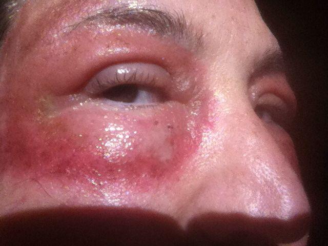 Swollen Eyes | Swollen Eye Reference | Pinterest | Eyes