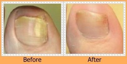 Click to see a complete photo gallery of toenails before and after laser treatment.