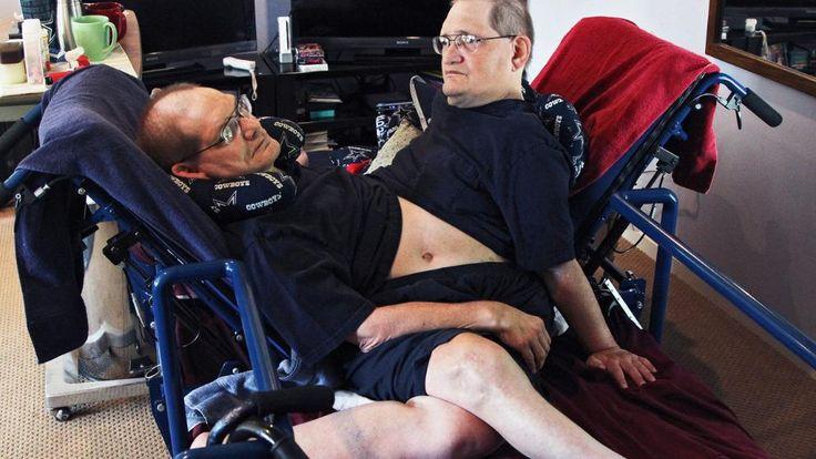 Siamesische Zwillinge Donnie (links) und Ronnie (rechts) 62 Jahre ein geteiltes Leben, in einem gemeinsamen Körper