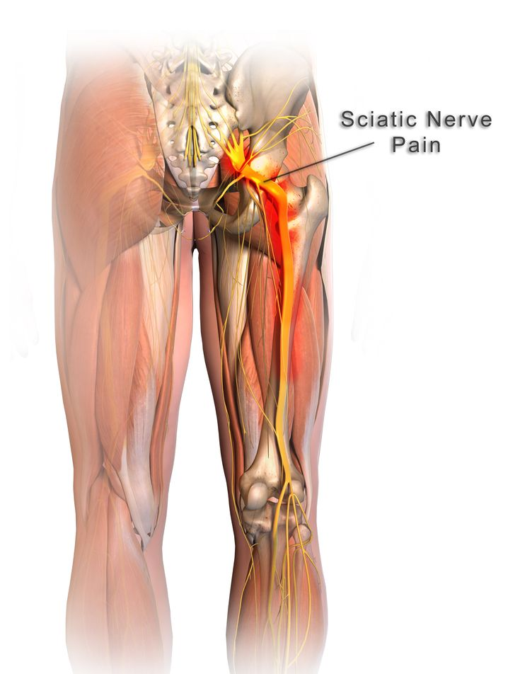 How Your Walking Posture Affects Your Sciatic Nerve