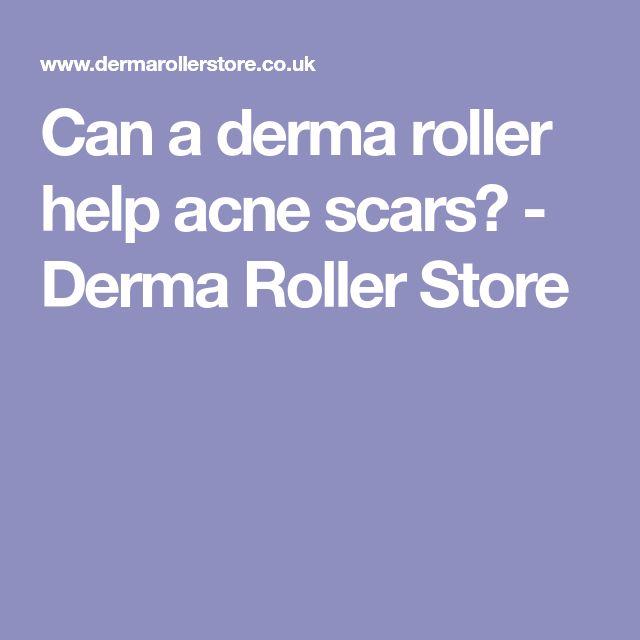Can a derma roller help acne scars? - Derma Roller Store