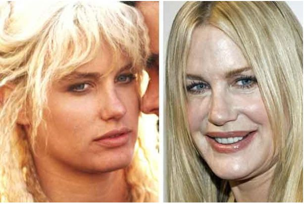 Daryl Hannah is a plastic surgery nightmare. Her botox abuse to hide the wrinkle...