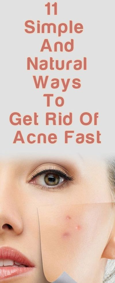 Natural Ways To Prevent Acne Marks