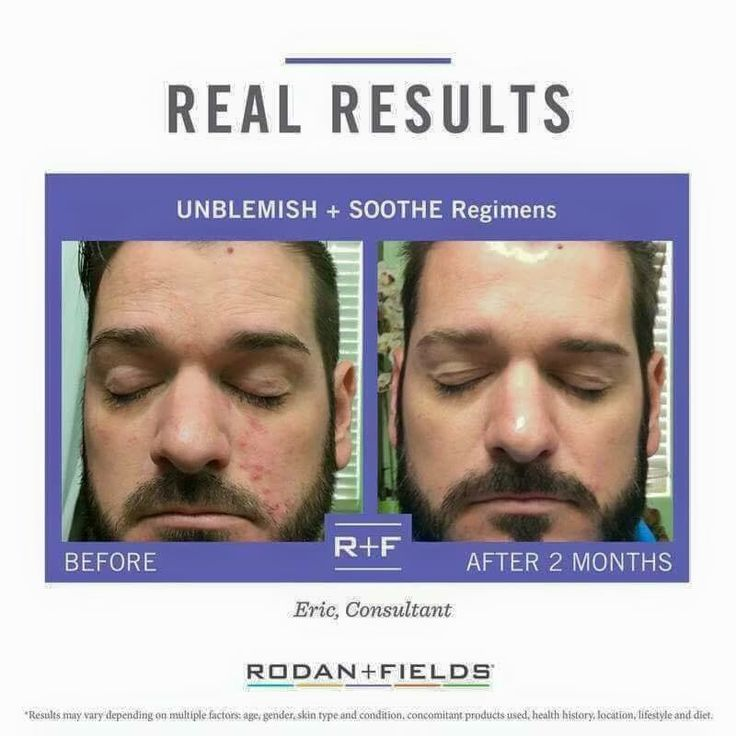 Yes, men love Rodan + Fields too. After all, skin is our largest origin. Unblemish can clear up teenage and adult acne. Put your best skin forward in 2017!! Message me for details. #60daymoneybackguarantee