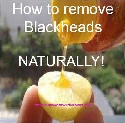 "DIY blackheads removal remedy: take a 1/2 of a lemon and add a drop of honey. ""Rub"" gently all over your face. Allow to dry then wash with lukewarm water. Done.Visit breakingworldnews... ""SHARE THIS""!!"