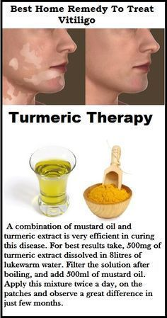 #Vitiligo Treatment  Turmeric Therapy. Cure Vitiligo within few days  #vilitigo