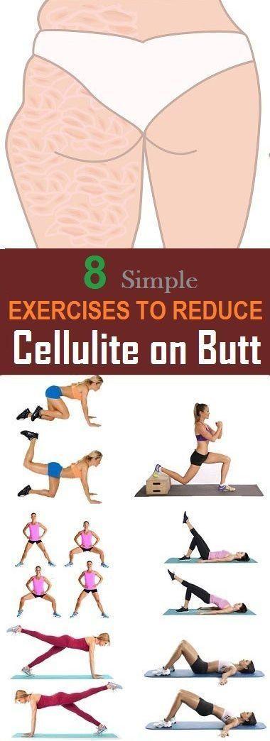 8 Die effektivsten Übungen zur Reduzierung von Cellulite am Gesäß