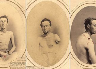 Gli Inquitanti Ritratti Medici della Guerra Civile Americana determinarono la Pensione dei Reduci