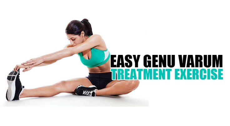 http://genuvarumnomore.com/genu-varum-treatment-exercise/