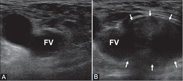 Inguinal Region - Femoral Hernia - The SFJ is the landmark used to assess for a femoral hernia - A controlled Valsalva maneuver is performed, normally resulting in distension of the femoral vein with increased intra-abdominal pressure. In contrast, a femoral hernia descends from above, causing a soft tissue bulge medial to the femoral vein, which is compressed - (A) was taken at rest and (B) during Valsalva.