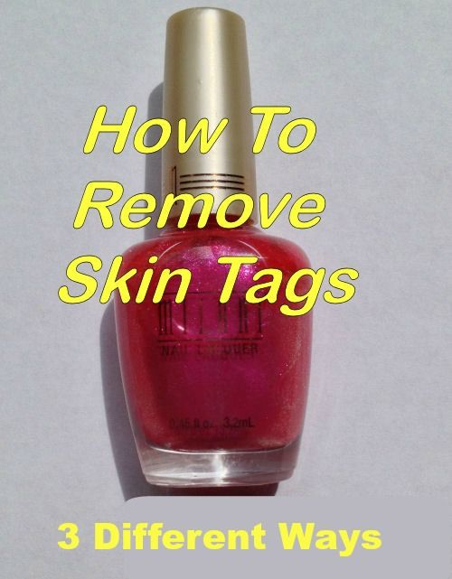 3 Ways to Remove Skin Tags