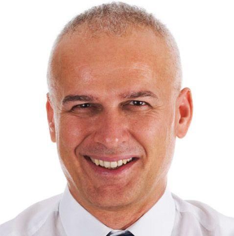 mens balding hair styles