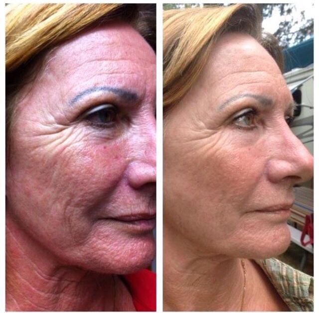¡Con NeriumAD puedes tener una piel radiante y obtener resultados como estos! 479-713-9871 www.visionglobal.nerium.com