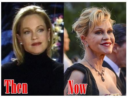 plastic surgery disasters | Before And After Plastic Surgery Disaster » Melanie Griffith Plastic ...