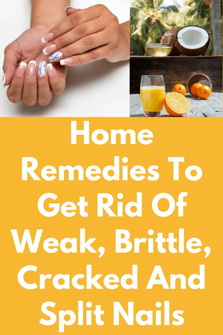 Home Remedies To Get Rid Of Weak, Brittle, Cracked And Split Nails ...