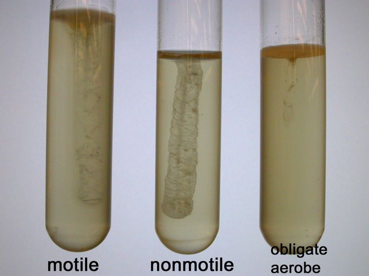 bacteria and motility medium tubes We will also utilize tubes of motility medium wherein only motile bacteria can move away from the line of inoculation in the low  in observing the tubes,.