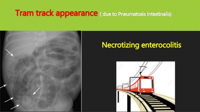 tram track appearance   due to pneumatosis intestinalis