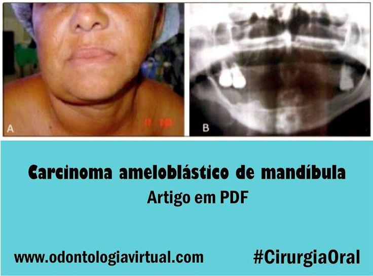 Carcinoma-ameloblastico