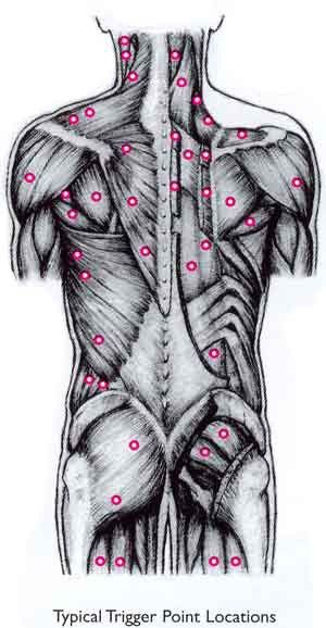 trigger point massage aaaaw yeah love to do trigger point so effective