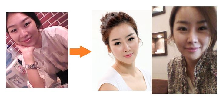 [Facial contouring - V-line mandibular contouring] plastic surgery in korea, cosmetic surgery in korea, V-line surgery, facial contouring, jaw reduction, cheekbone reduction, genioplasty, zygoma reduction, before and after surgery
