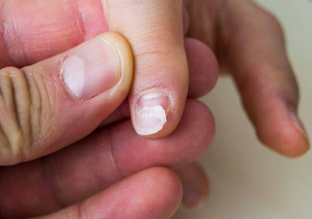 Nail Fungus Cream Newest Treatment For Fingernail Fungus 2017 Toenail Fungus Remedies Nail Fungus Cure Nail Fungus Treatment Toenails