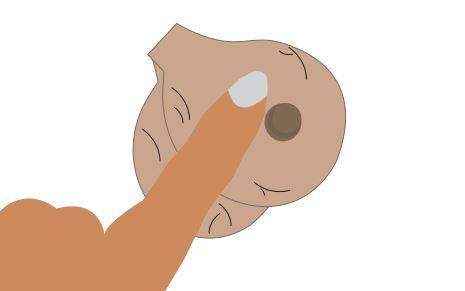Ball growth under facial skin