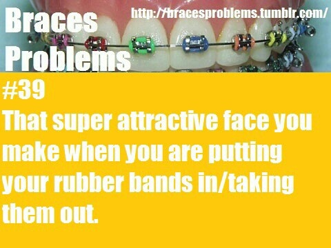 Braces Problems #39- laughing so hard at this! I hate doing this in public because when I do people always stare at me like I hve problems. LOL!
