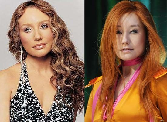 Tori Amos Plastic Surgery Photo before and after – www.celeb-surgery … – #Amos…