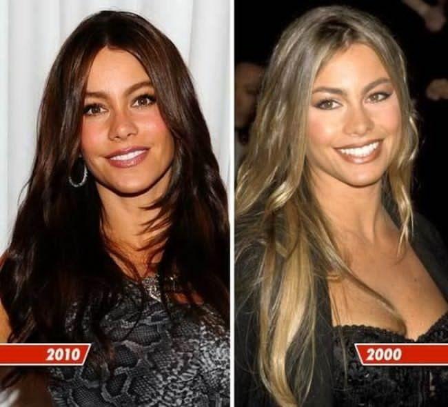 Sofia Vergara Plastic Surgery Before After