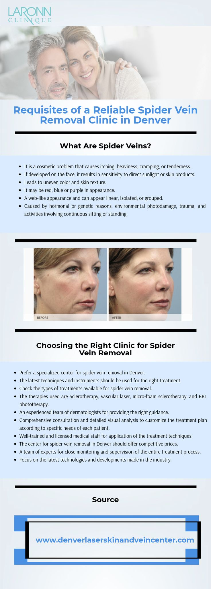 Requisites of a Reliable Spider Vein Removal Clinic in Denver  Check the types of treatments available for spider vein removal. The therapies used are Sclerotherapy, vascular laser, micro-foam sclerotherapy, and BBL phototherapy.   For more details visit: http://www.denverlaserskinandveincenter.com/spider-vein-treatment/