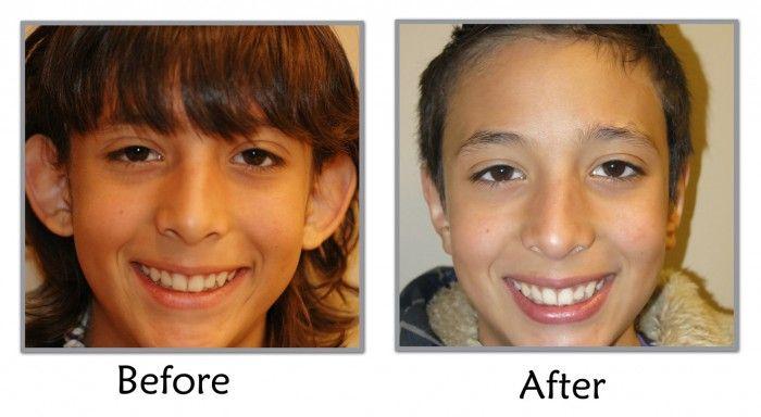 ABC4Utah - Dr. Thompson & Ear Pinning Surgery (Otoplasty) in Utah