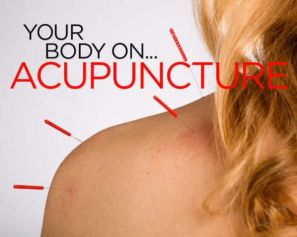 What Happens to Your Body When You Get Acupuncture  http://www.womenshealthmag.com/health/what-happens-when-you-get-acupuncture