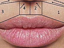 Quasi ogni donna è alle prese con i peli superflui del viso, soprattutto i baffetti sopra il labbro superiore. La maggior parte delle donne ricorron