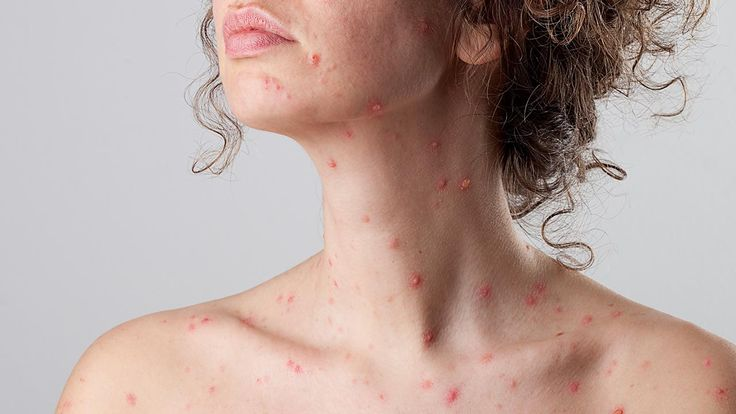 Shingles is characterized by painful vesicular rash, featuring small  blisters on the skin.  This rash is usually restricted to a horizontal band  around the torso.