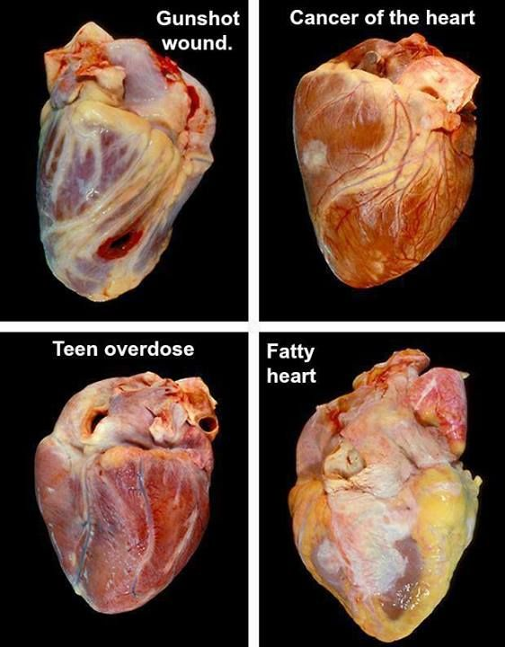 Four human hearts with various afflictions.